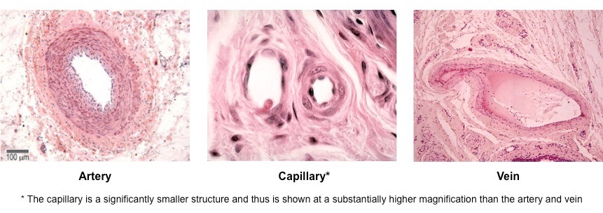 compare arteries veins and capillaries in A bbc bitesize secondary school revision resource for standard grade biology on need for energy: lungs, gas exchange, heart, arteries, veins, capillaries.