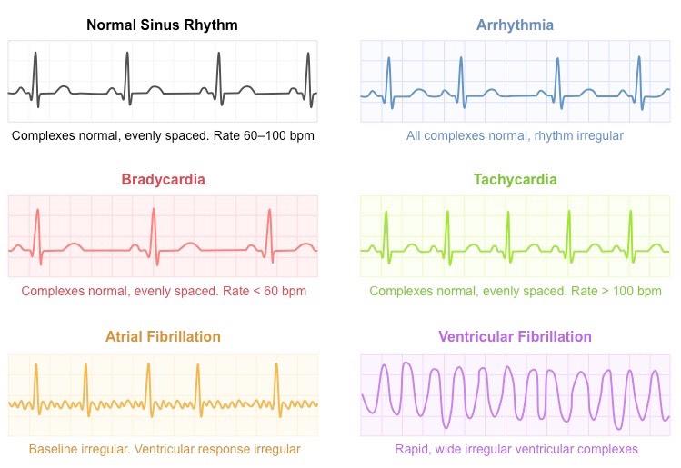 Electrocardiography bioninja ecg data ccuart Images