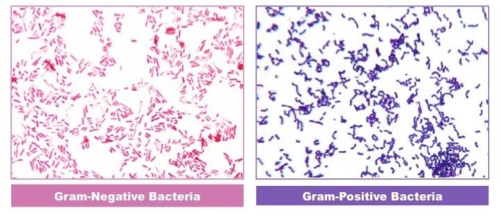 Gram Staining | BioNinja