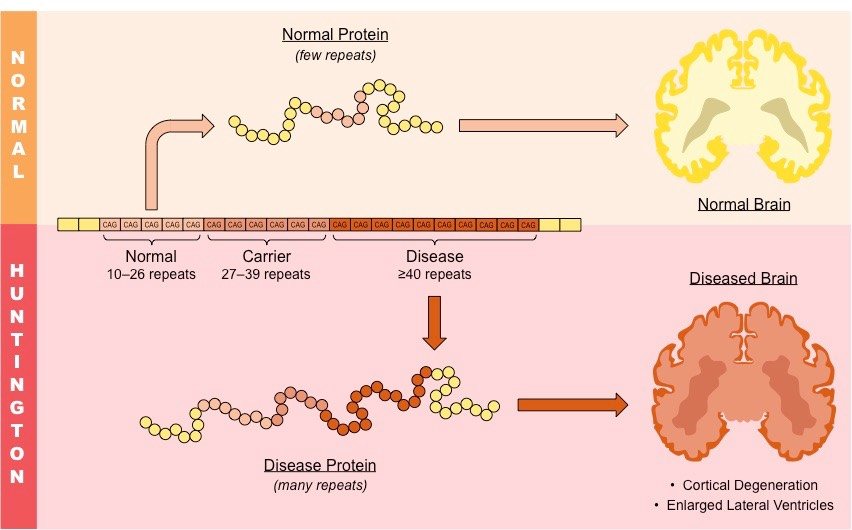 understanding huntingtons disease Huntington's disease is a degenerative disease of the nervous system that sets in when a person is in their 30s or 40s, although they show no signs of the disease before it kicks in over a decade ago, researchers discovered that sufferers all have a fault in a specific gene, which makes a protein called huntingtin.