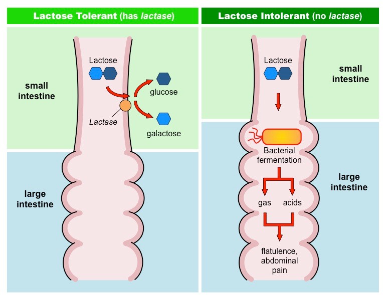 Image result for lactose intolerance pictures